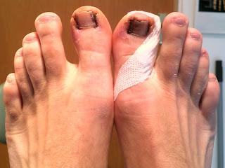 hammer toes symptoms - HD1600×1198
