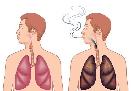 「肺 画像」の画像検索結果
