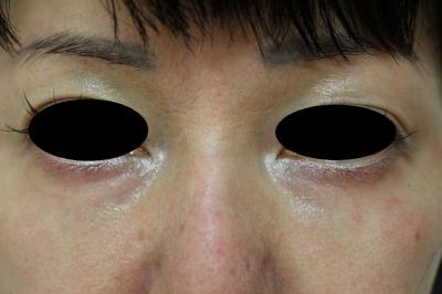 涙 袋 ヒアルロン 酸 持ち 涙袋のヒアルロン酸注入の整形を考えています。注入してからどのくら...