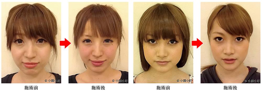 朝のむくみ顔が5分で元にもどる即効解消法 | メガ …
