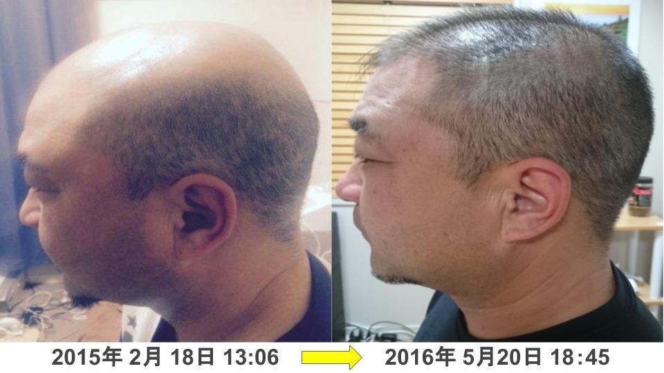 40代男性円形脱毛症治療発毛実績