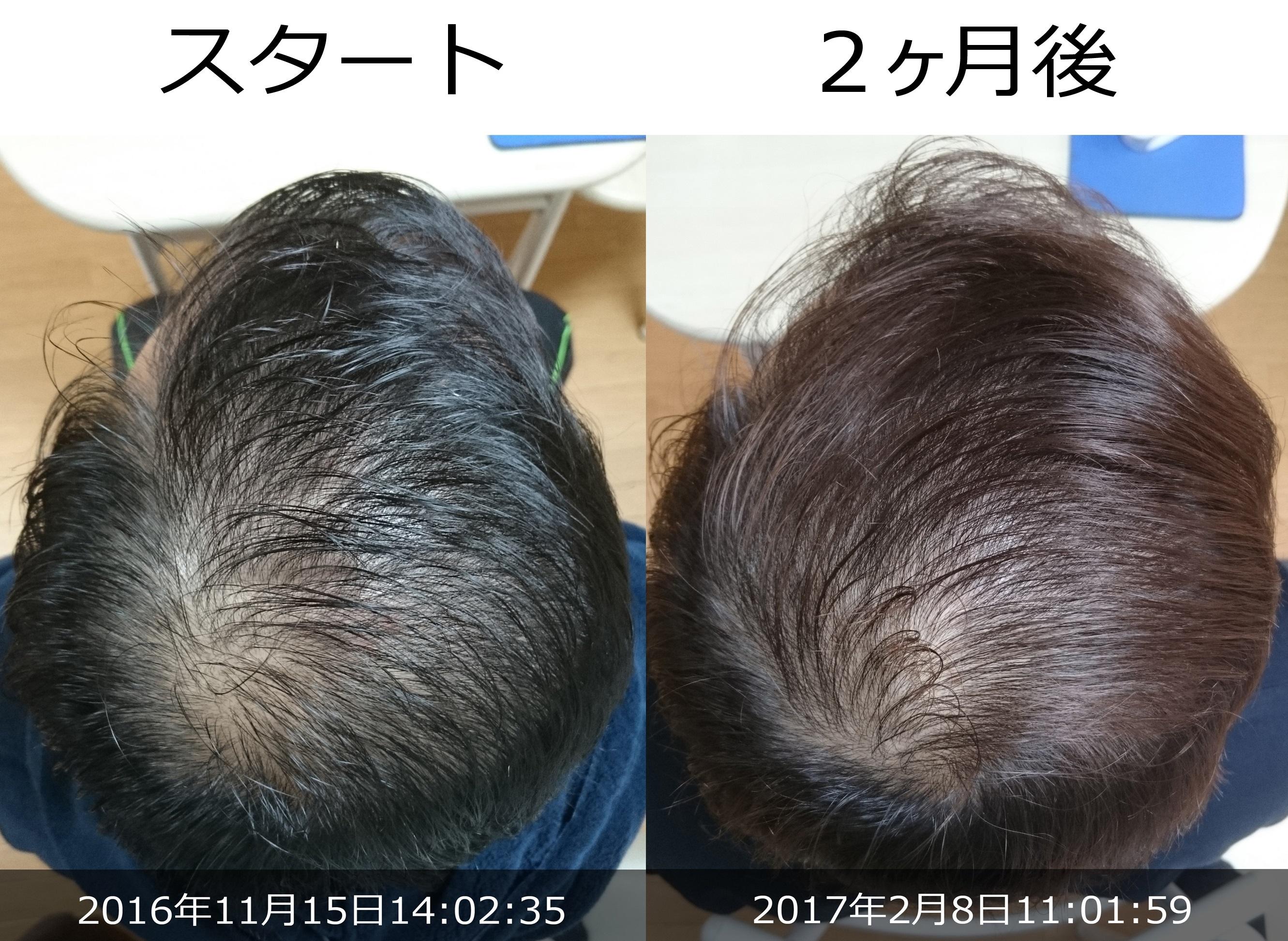 40代男性AGA治療発毛経過