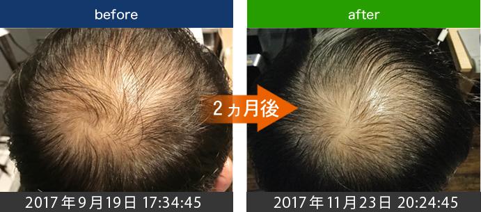 40代男性AGA治療(つむじ周り)発毛経過