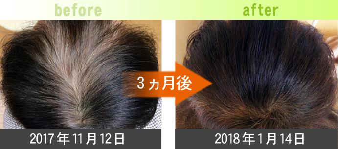 50代男性AGA治療(頭頂部)発毛症例