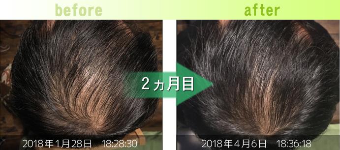 50代男性AGA治療(つむじ周り)発毛改善例
