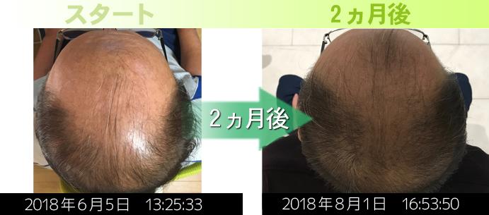 熊本AGA治療(つむじ周り)発毛経過