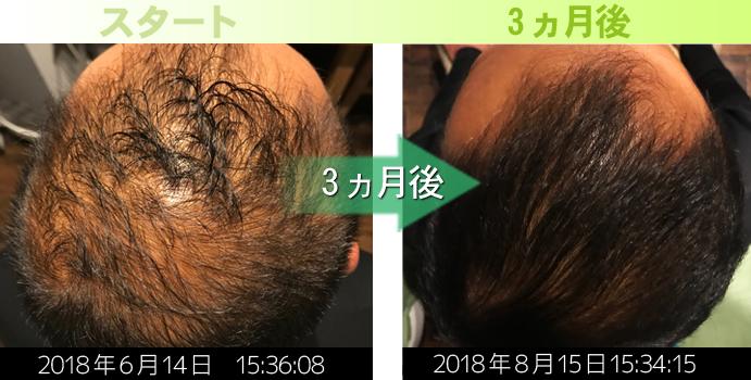40代男性頭頂部発毛実績