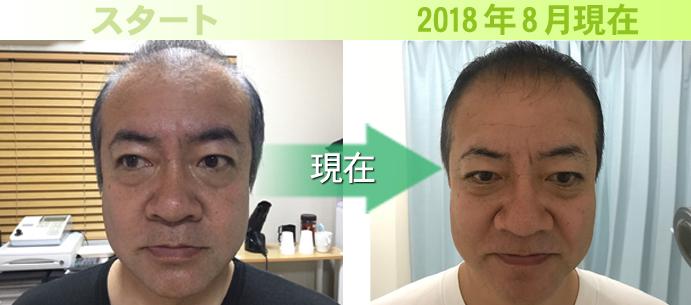40代男性かめきちさんの発毛実績
