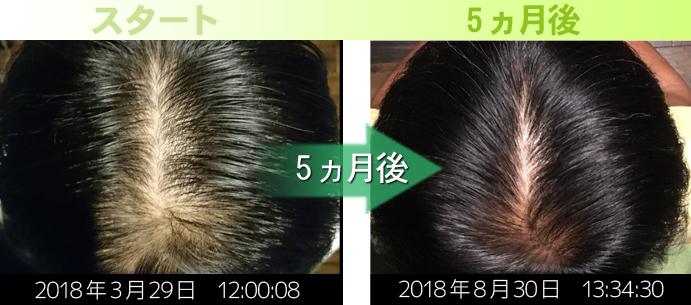 40代男性頭頂部の発毛実績
