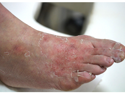 足の甲の写真。広範囲にわたりびらんが生じている。