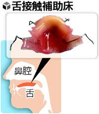 舌接触補助床(ぜつせっしょくほじょしょう)